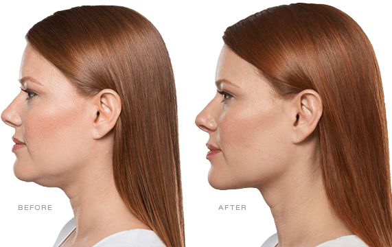 About-Kybella-lake-norman-aesthetics-concierge-med-spa-laser-center-mooresville-nc-28117