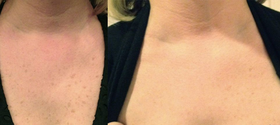 brown-spot-removal-on-chest-laser-treatment-lumecca-lake-norman-aesthetics-concierge-med-spa-laser-center-mooresville-nc-28117