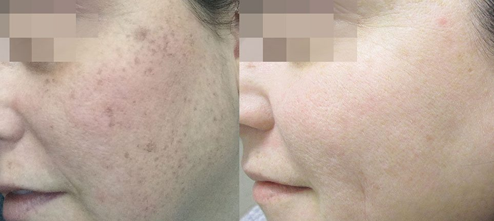 brown-spot-removal-on-face-laser-treatment-lumecca-lake-norman-aesthetics-concierge-med-spa-laser-center-mooresville-nc-28117