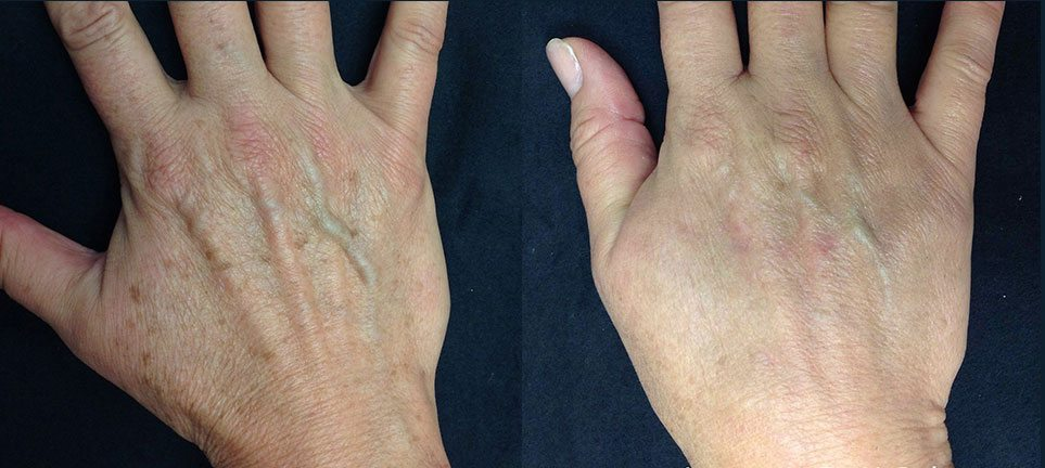 brown-spot-removal-on-hands-laser-treatment-lumecca-lake-norman-aesthetics-concierge-med-spa-laser-center-mooresville-nc-28117