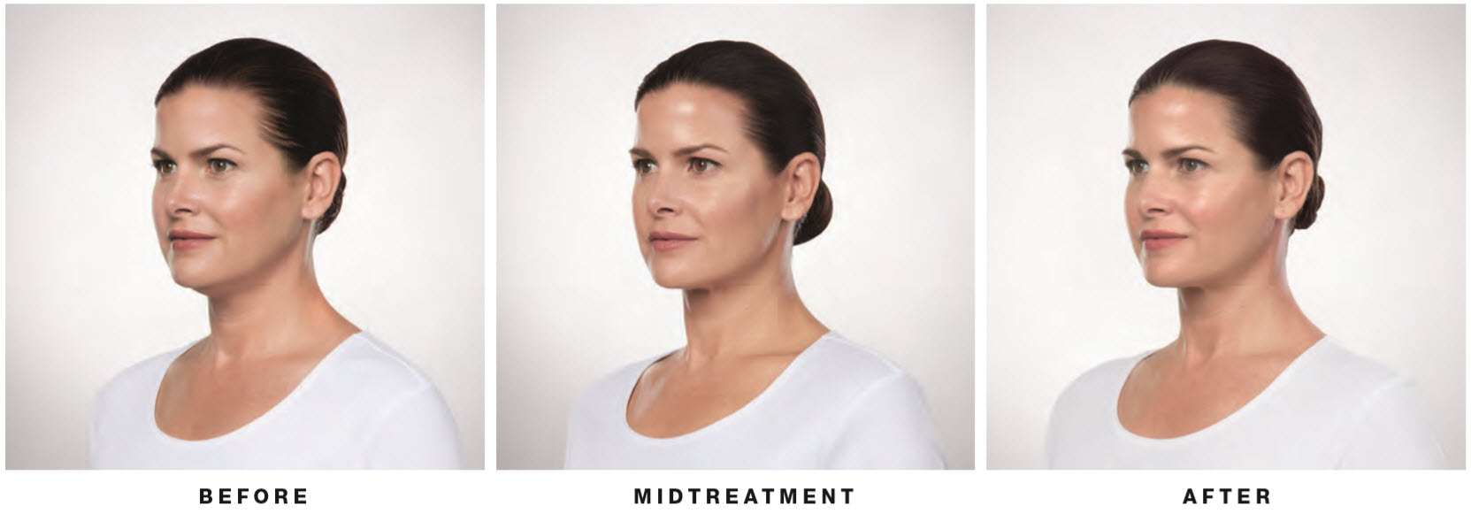 kybella-female-side-lake-norman-aesthetics-concierge-med-spa-laser-center-mooresville-nc-28117