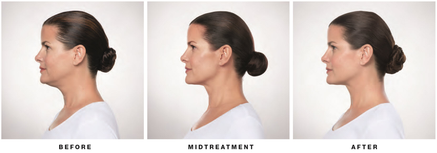 kybella-female-side-view-lake-norman-aesthetics-concierge-med-spa-laser-center-mooresville-nc-28117