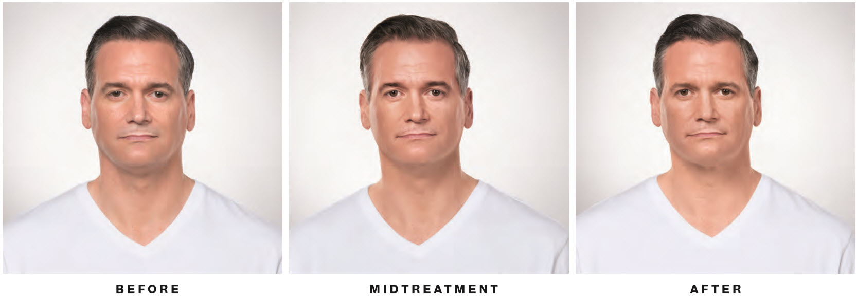 kybella-man-front-view-lake-norman-aesthetics-concierge-med-spa-laser-center-mooresville-nc-28117