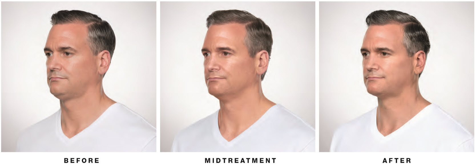 kybella-man-side-lake-norman-aesthetics-concierge-med-spa-laser-center-mooresville-nc-28117
