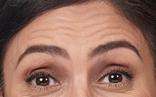 lake-norman-aesthetics-mooresville-nc-28117-alexandra_front_forehead_before-botox